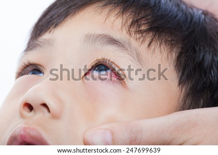 Closeup pinkeye (conjunctivitis) infection on a little asian (thai) boy, mother check up eye her son - stock photo