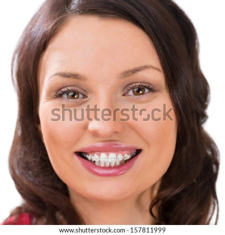 Closeup portrait of charming woman wearing orthodontic ceramic white brackets looking at camera and smiling - stock photo