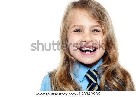Closeup shot of a happy school kid flashing toothy smile wearing braces. - stock photo