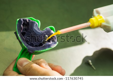 closeup shot of dental impression with implant - stock photo