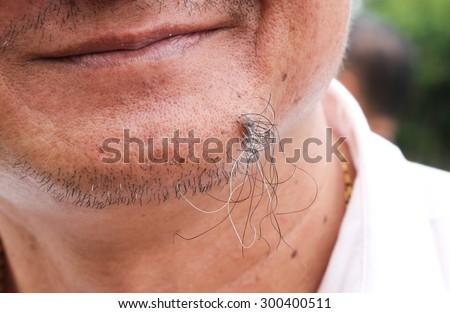 closeup view of caucasian man mole with ingrown hair - stock photo