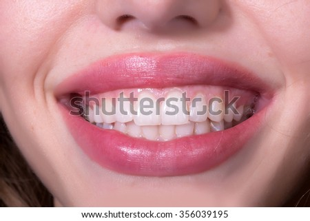 Closeup view of female smiling happy opne mouth with soft pink natural lips and white clean perfect healthy beautiful teeth on medical dental background, horizontal picture - stock photo