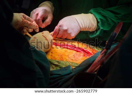 closure sternum bone with metal wires - stock photo