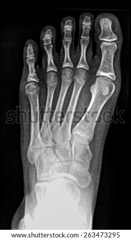 Colection x-ray of foot - stock photo