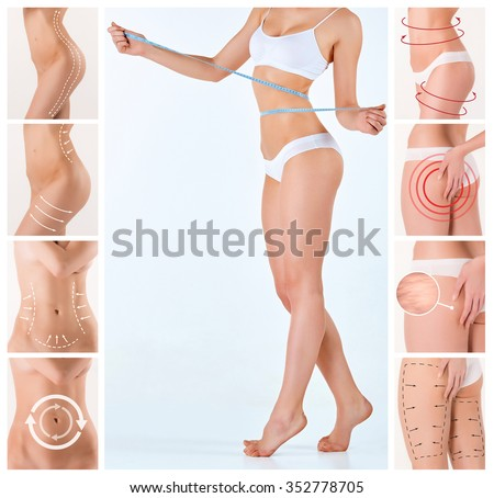Collage of female body with the drawing arrows. Fat lose, liposuction and cellulite removal concept. - stock photo