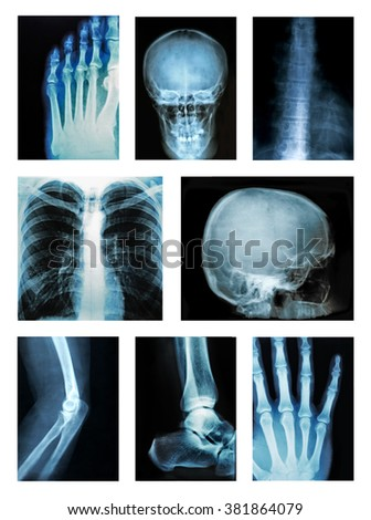 Collage of many X-rays - stock photo