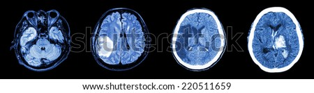 Collection CT scan of brain and multiple disease (Left to Right  :  Normal brain,Brain tumor,Cerebral infarction,Intracerebral hemorrhage) - stock photo