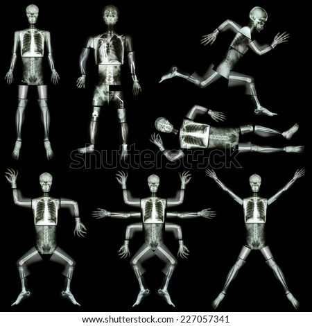 Collection of human skeleton (X-ray whole body : skull head face neck spine shoulder arm forearm elbow wrist hand finger thorax lung heart abdomen pelvis leg knee joint thigh foot ankle heel ) - stock photo
