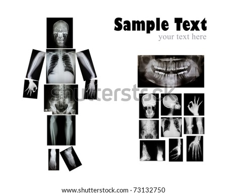 collection of x-ray - stock photo