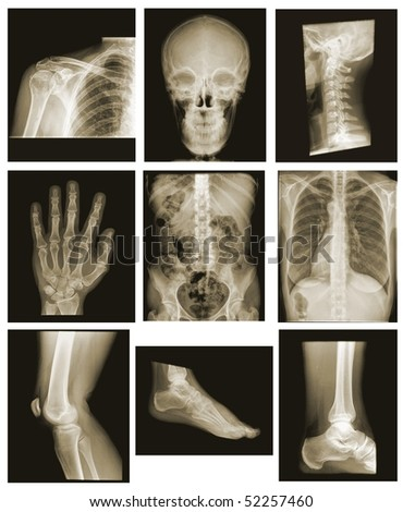 collection of x-ray isolated on black background - stock photo
