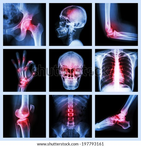 Collection X-ray and multiple injury - stock photo