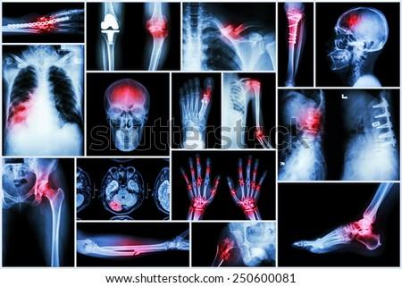 Collection X-ray multiple disease (stroke ,fracture ,osteoarthritis ,pneumonia ,tuberculosis ,spondylosis ,spondylolisthesis ,gout ,rheumatoid arthritis ,brain tumor ,orthopedic operation ,etc) - stock photo