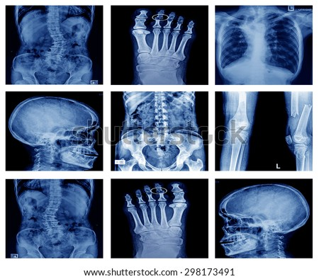 "Collection X-ray ""Multiple part of human,orthopedic surgery and multiple disease"