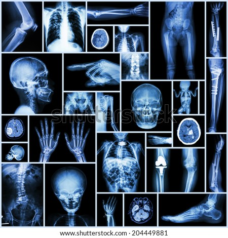 "Collection X-ray ""Multiple part of human,orthopedic surgery and multiple disease"" (Fracture,Pulmonary tuberculosis,Arthritis,Gout,Rheumatoid,Osteoarthritis,Stroke,Scoliosis,brain tumor, etc) - stock photo"