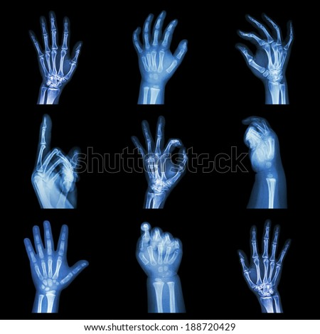 Collection x-ray of hands - stock photo
