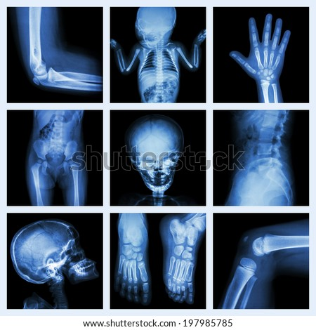 Collection X-ray part of child - stock photo
