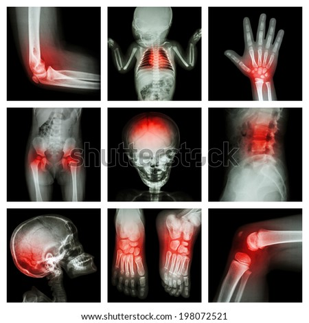 Collection X-ray part of child and multiple injury