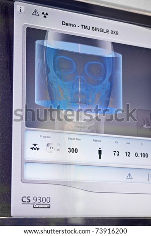 COLOGNE - MARCH 22: 3D image of human skull for dentist work on display at the Carestream booth at the IDS Dental Industry trade show in Cologne, Germany on March 22, 2011.