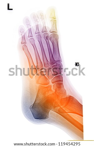 colorful  foot and ankle  x-rays  image - stock photo