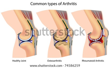 Common types of arthritis - stock photo