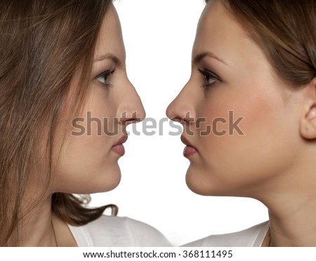 comparative portrait of a young woman before and after rhinoplasty - stock photo