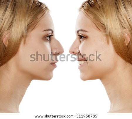 comparative portrait of female face, before and after plastic surgery of the nose - stock photo