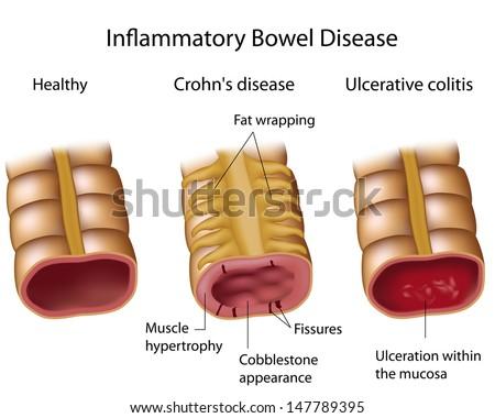 Compare Crohns and Ulcerative colitis - stock photo
