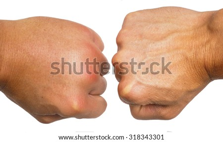 Comparing swollen male caucasian hands isolated towards white background - stock photo