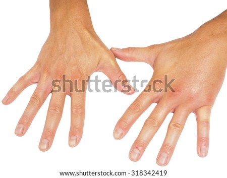 Comparing swollen male hands isolated towards white background - stock photo