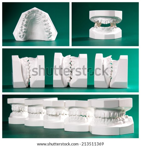Compilation picture of dental study models on green background - stock photo