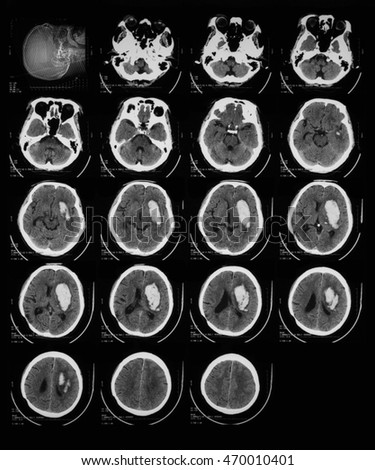 Computed Tomography(CT) of the brain, brain tumor, brain abscess, a 63 year old male