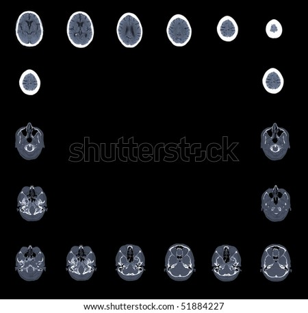 computed tomography of skull with brain on black background - stock photo