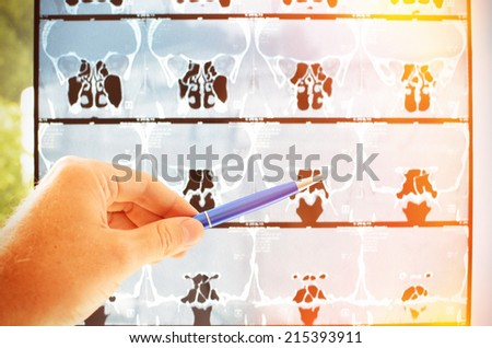 Computer tomography  - stock photo