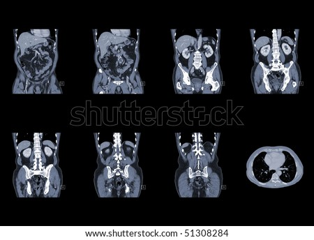 computer tomography of chest and abdomen, ct scan isolated on black background - stock photo