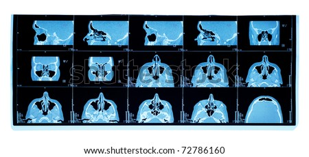 computer tomography of maxillary sinus. nasal septum deviation - stock photo