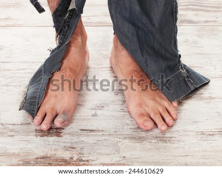 concept of a poor person and his feets