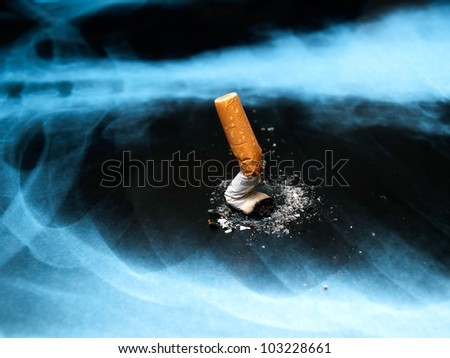 Conceptual image about smoking issues and lung cancer. - stock photo