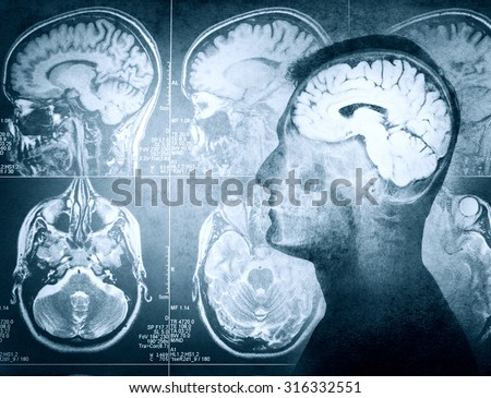 Conceptual image of a man from side profile showing brain and brain activity. Retro stale. - stock photo