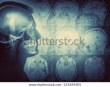 Conceptual image of a man from side profile showing brain and brain activity. Retro style.