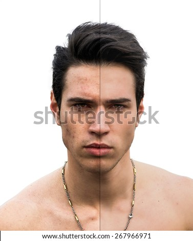 Conceptual Pimple and Flawless Face Sides of a Bare Young Man with Necklace, Staring at the Camera. Isolated on a White Background. - stock photo