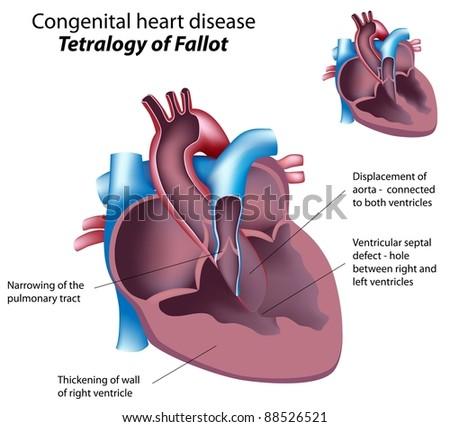 Congenital heart disease: Tetralogy of Fallot - stock photo