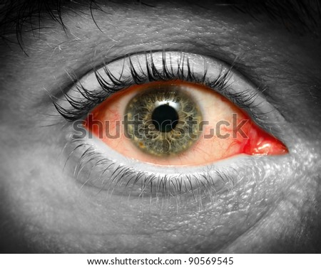 Conjunctivitis. Photo of an infected eye - stock photo