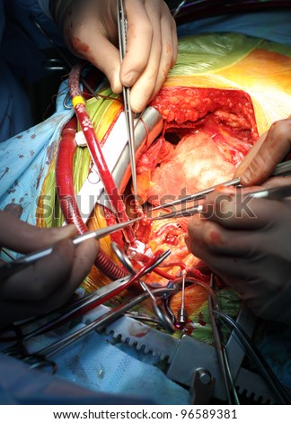 Coronary artery bypass surgery. anastomosis between internal thoracic artery and the coronary artery. Cardiosurgical operation. - stock photo