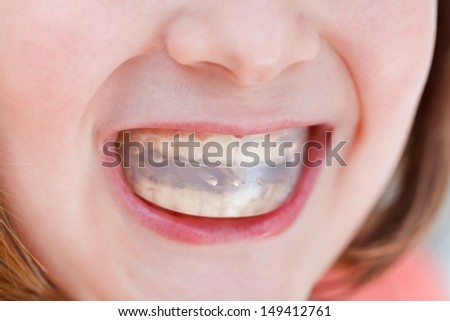 correction of child occlusion by orthodontic trainer - stock photo