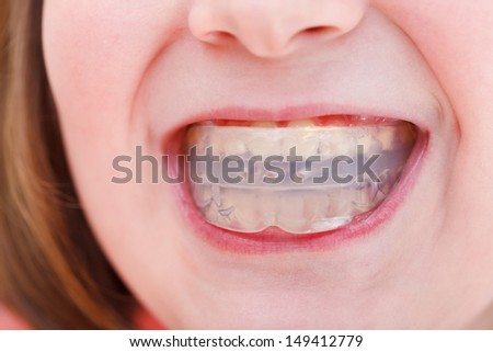 correction of children occlusion by pre-orthodontic trainer - stock photo