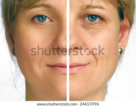 Correction of wrinkles on half face - stock photo