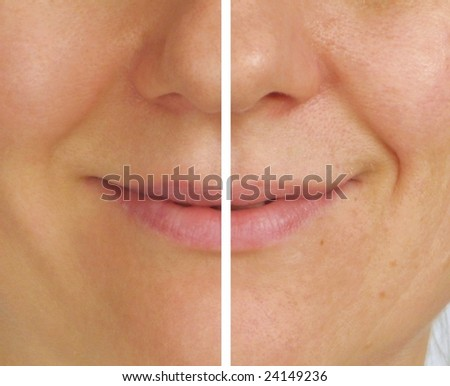 Correction of wrinkles on half of face - stock photo