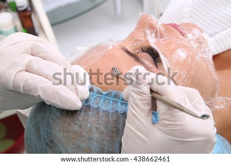 Cosmetologist at spa beauty salon doing acne treatment using mechanical instrument. Concept of medical treatment of rejuvenation and skincare. - stock photo