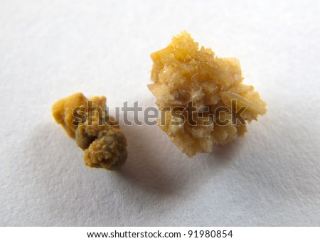 Couple of kidney stones on macro shot