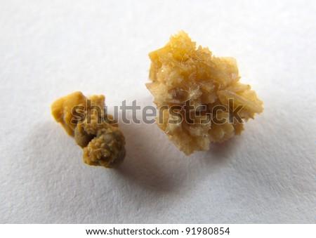 Couple of kidney stones on macro shot - stock photo